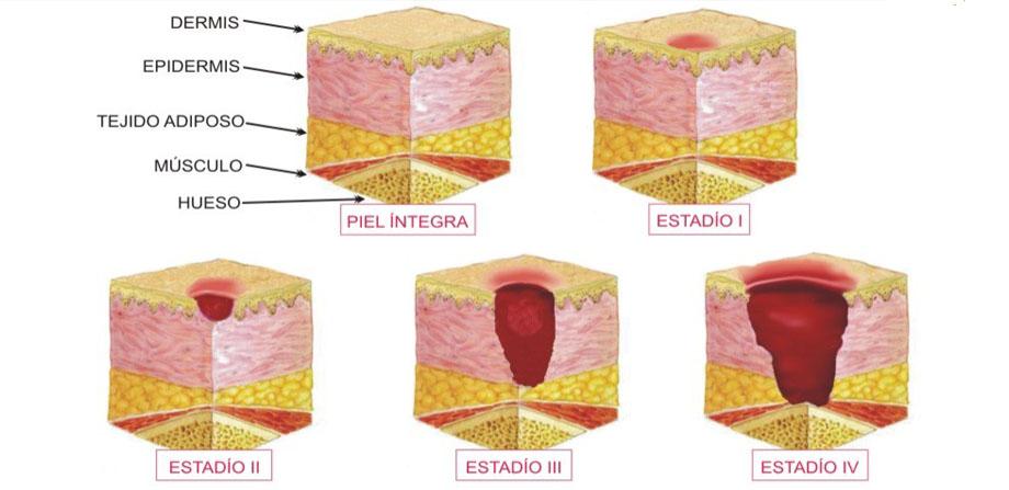 Aspaym Andalucía elabora un protocolo para prevenir la aparición de úlceras por presión